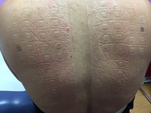 skin reaction after patch test