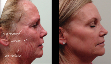 Chemical Peel Expresscare Guam Clinic Doctors For